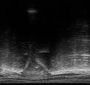 Lumbosacrale-overgang-op-echografische-scan-2