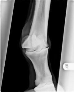 Röntgenopname van een kogelgewricht met forse artrose