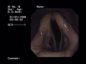 Plaatje van een bronchoscopie van het strotteklepje