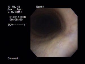 Plaatje van een bronchoscopie van de luchtweg luchtpijp