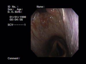 Plaatje van luchtwegscopie in de keelholte